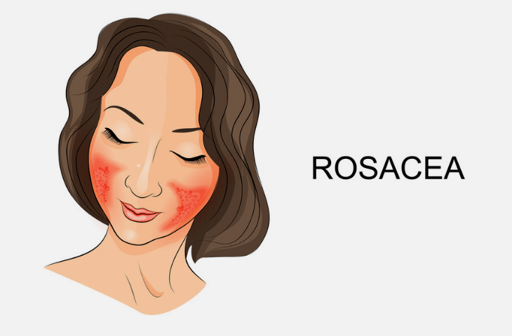 Rosacea on a girls face